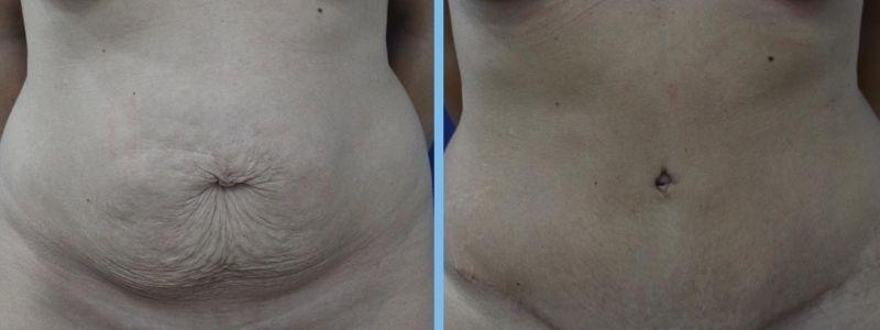antes y después de una abdominoplastia en una mujer