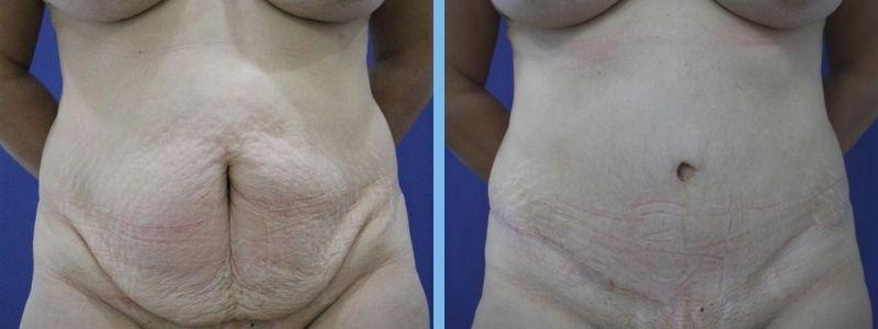 foto antes y después de una operación de abdominoplastia