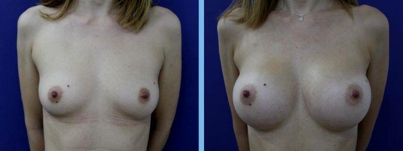 Antes y después de aumento de pecho pequeño