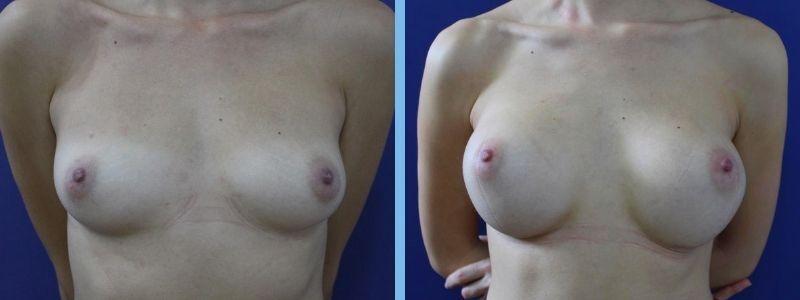 Antes y después de aumento de pecho separado