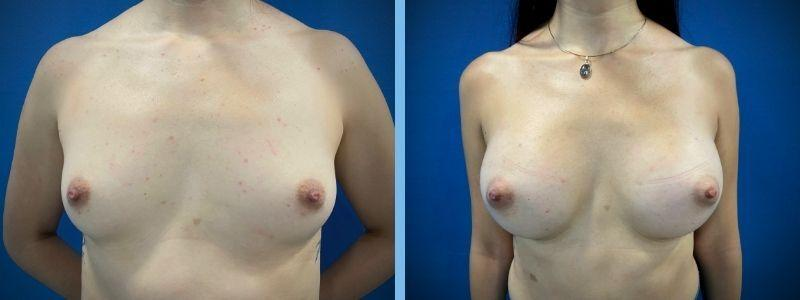 Antes y después de aumento de mamas