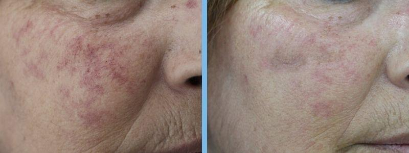 resultado de tratamiento corrección de imperfecciones con luz ipl
