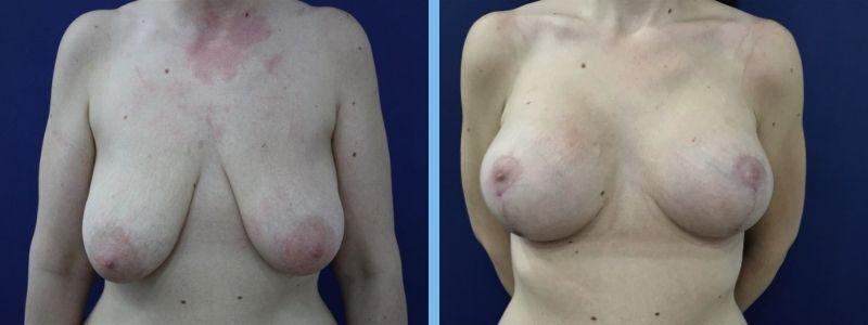 elevación de pechos antes y después