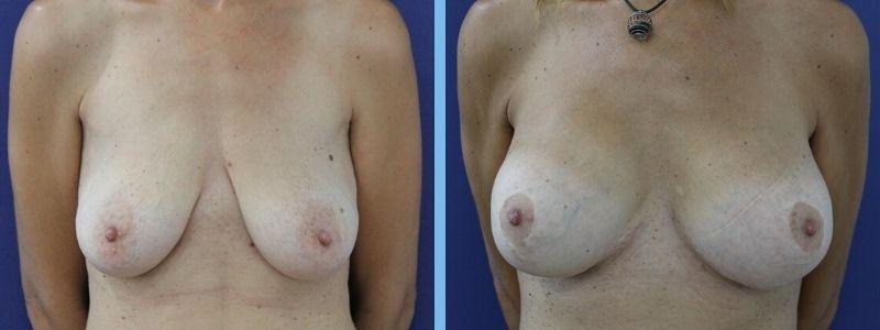 elevación de mamas antes y despues