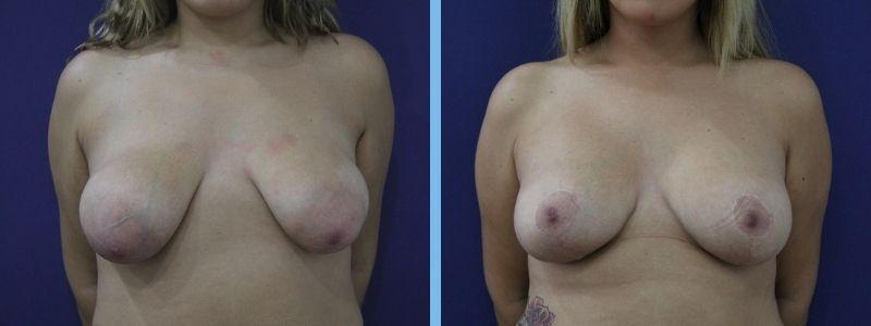elevación pechos antes y después