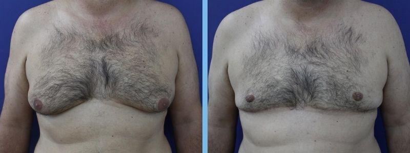 ejemplo de GINECOMASTIA en hombre antes y después