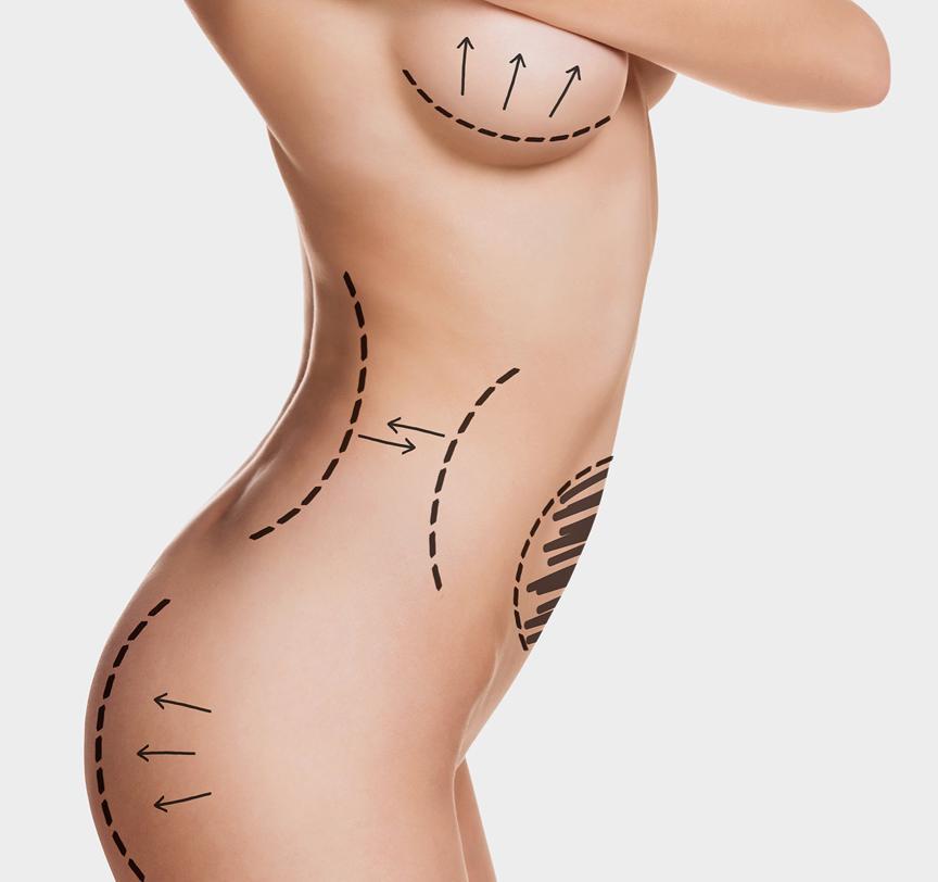 cirugia-intima