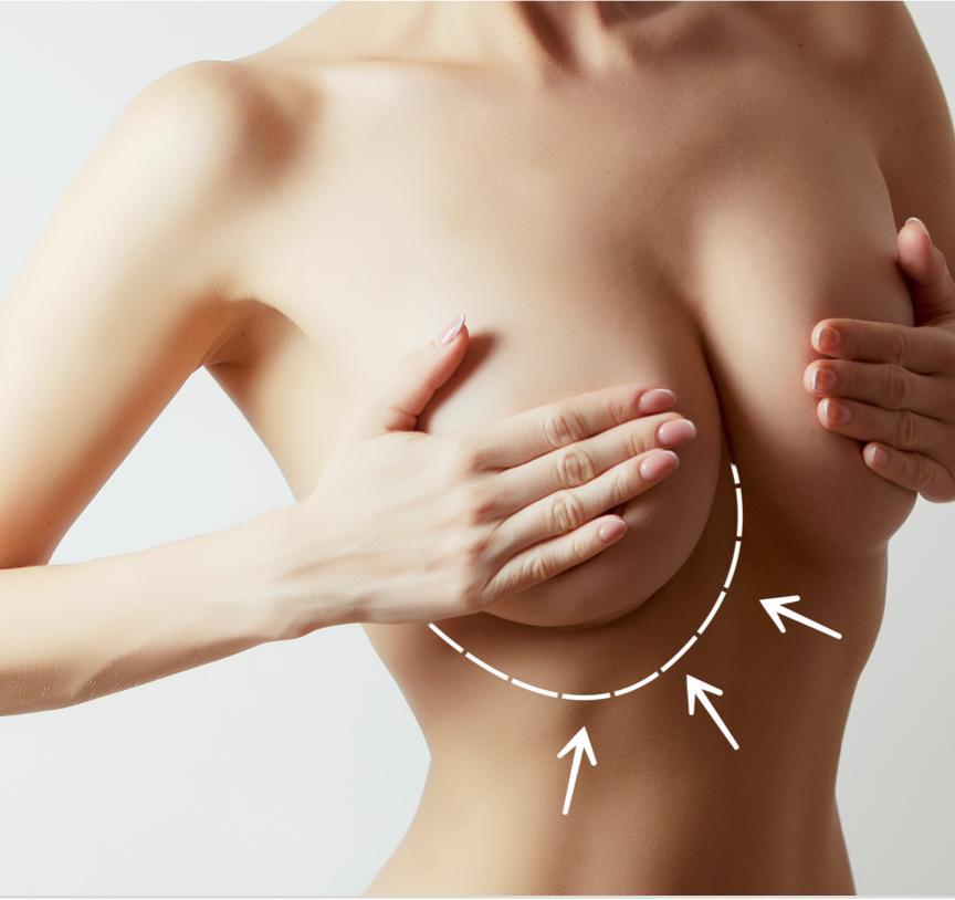 chica preparada para cirugía de la mama