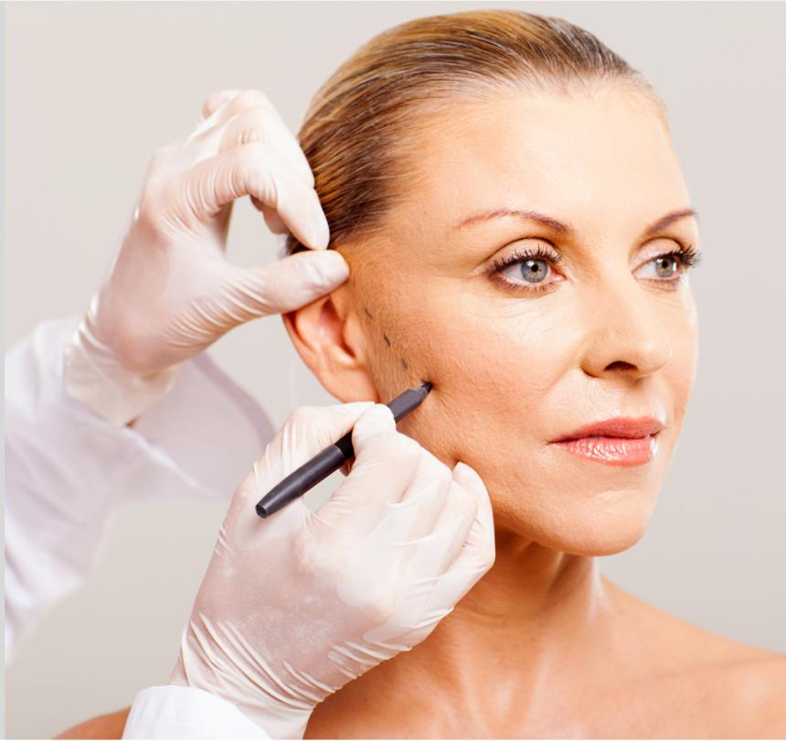 mujer en cirugia facial