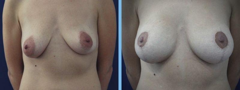 mujer con cirugía mamaria con mamas asimetricas antes y después
