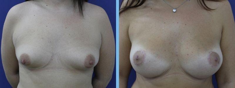 antes y después de operación de pecho tuberoso