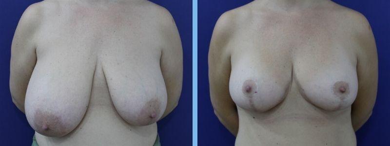 foto de cirugía de reducción de mamas antes y después