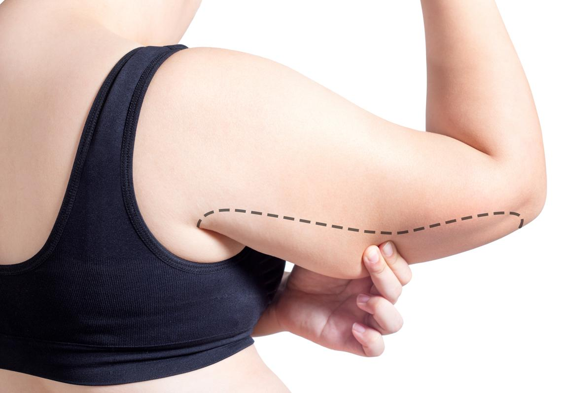 mujer mostrando brazo antes de un lifting