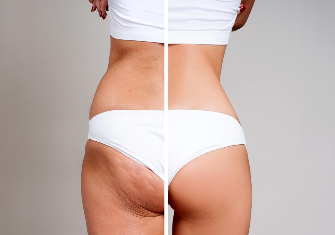 antes y después de tratamiento corporal de lipotransferencia en una mujer