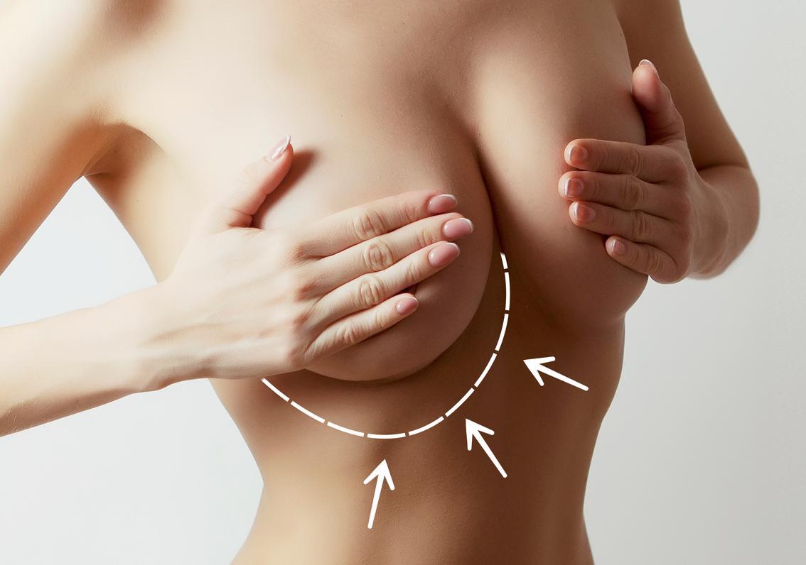 cirugía de reducción de mamas