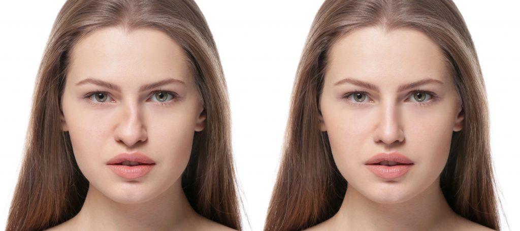 Antes y después operación rinoplastia.