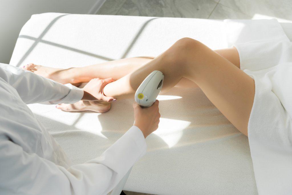 Tratamiento de fotodepilación laser piernas