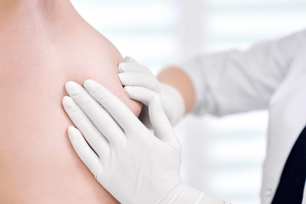 Médico examinando un pecho para saber si tiene mamas tuberosas