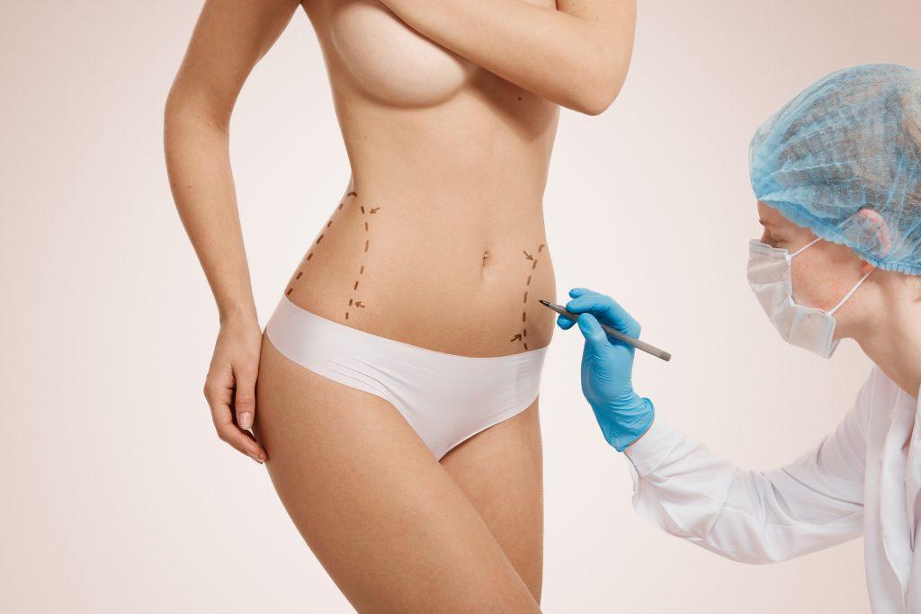 Mujer haciéndo una liposucción