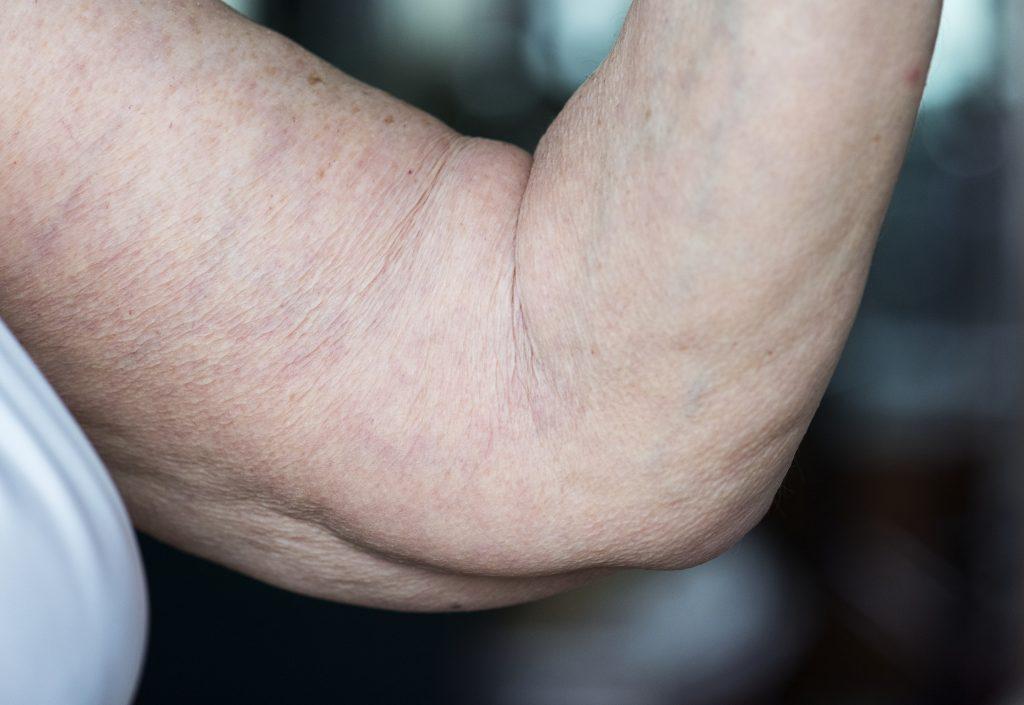 brazo de mujer antes de braquioplastia