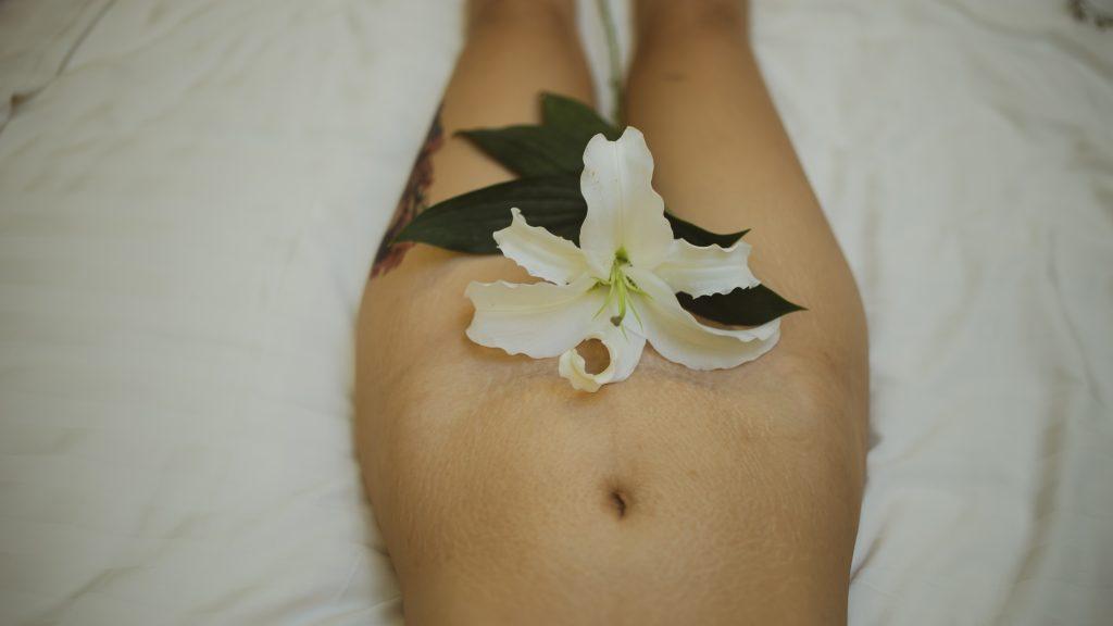 mujer antes de labioplastia